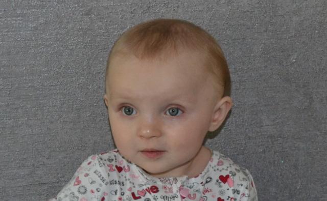 Thumbnail для -  Лера Мурейко, 1 год, парез Керера, поражение ЦНС смешанного генеза, врожденные вывихи тазобедренных суставов, г. Спасск Дальний